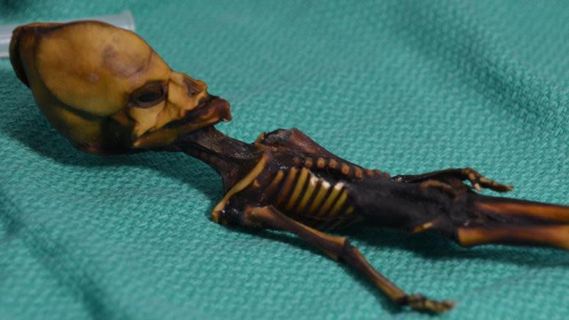 """La """"mummia extraterrestre"""" trovata nel deserto di Atacama è in realtà un umano mutante e minuscolo"""