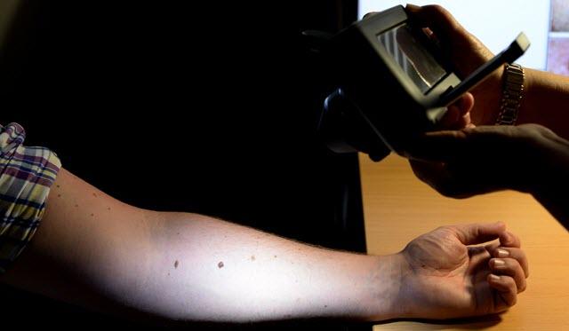 L'intelligenza artificiale può identificare il cancro della pelle in modo più accurato rispetto ai medici