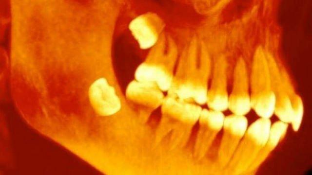 denti-giudizio